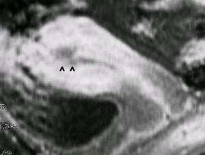 Sistem Reproduksi Tumor Uterus