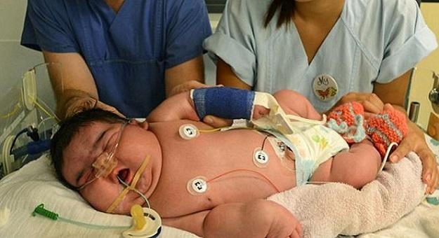 askeb-bayi-baru-lahir-dengan-makrosomia